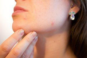 disimular los granos con maquillaje
